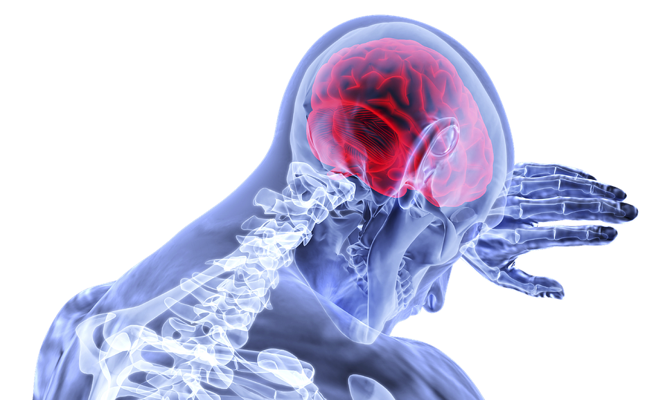 Topiramate For Help With Migraines